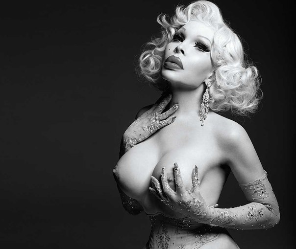 Amanda lepore had too much fillers put in her cheeks and lips
