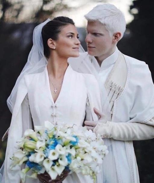 Пара из Грузии стала популярна благодаря своей притягательной и необычной внешности