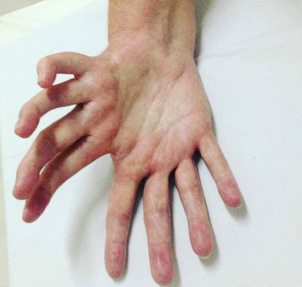 Синдром зеркальной руки Вот уж поистине редкая аномалия - Ульнарная димелия. На всей Земле не более сотни подтвержденных случаев подобной деформации. Локтевая кость дублируется, большого пальца